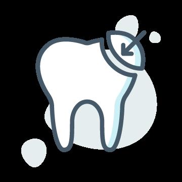 Dental Bounding in wagga