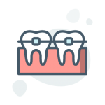 Dental Brace illustration