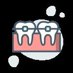 Dental Brace illustration