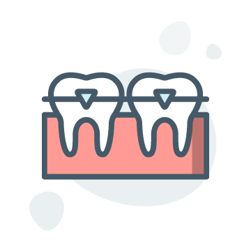 Orthodontics Illustration