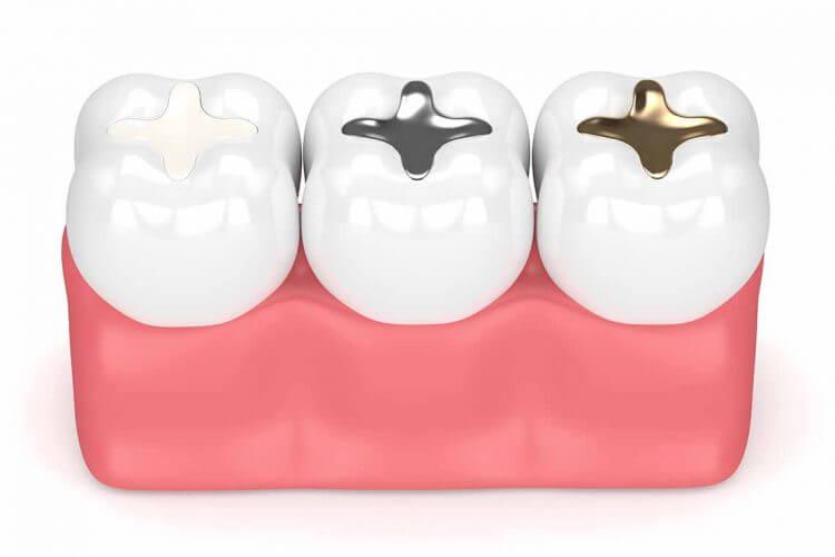 Dental Fillings Sample by illustration