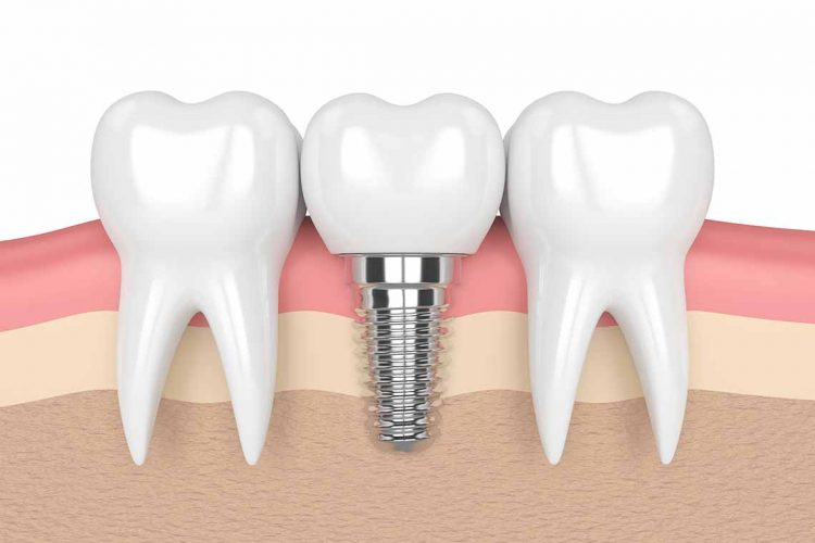 diagram of a dental implant wagga wagga