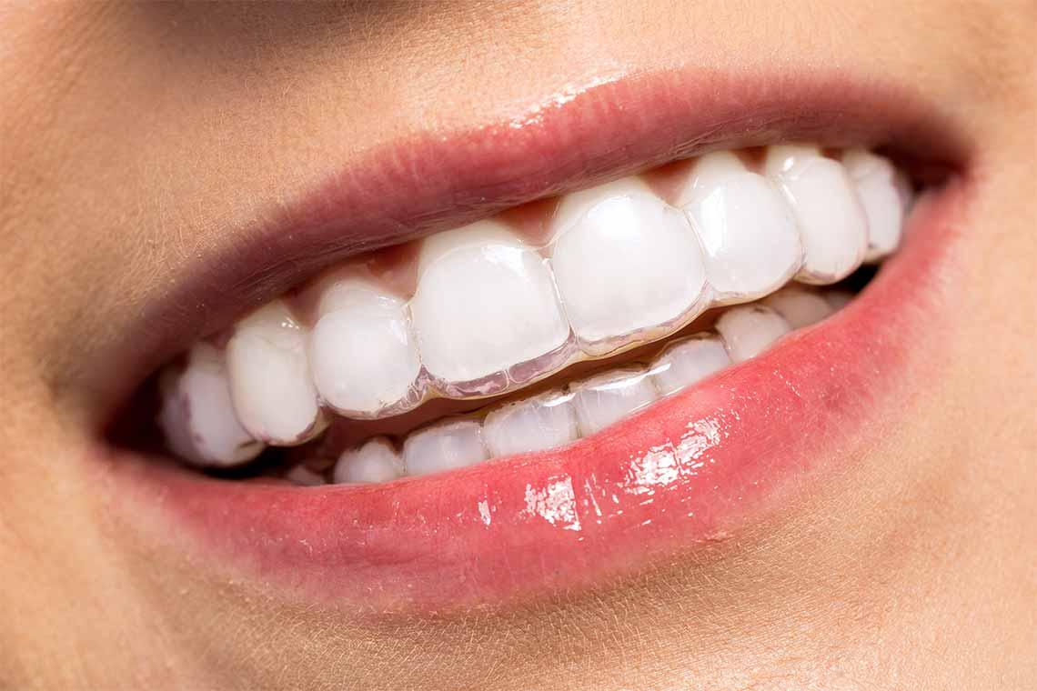 Invisalign teeth grind