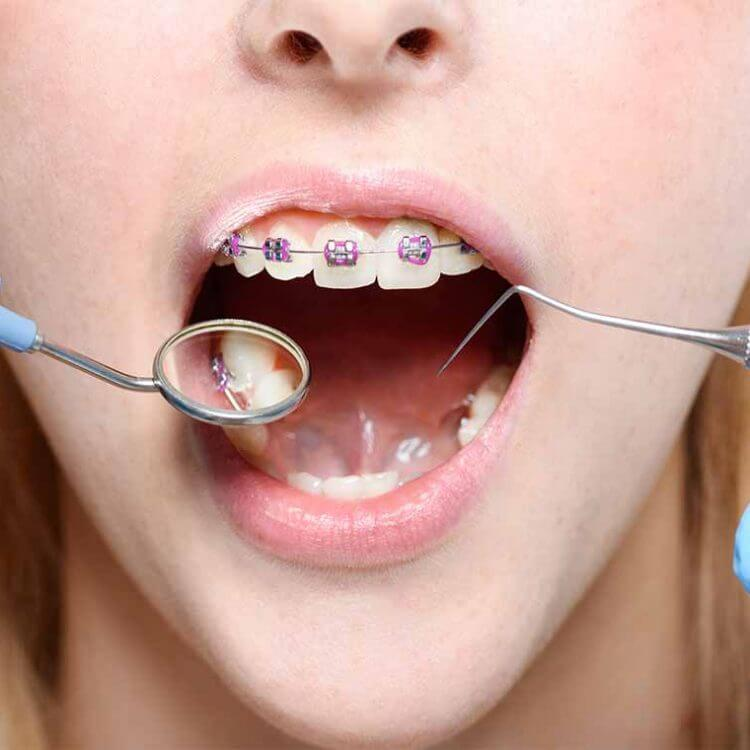 Examine patient by Orthodontist Wagga