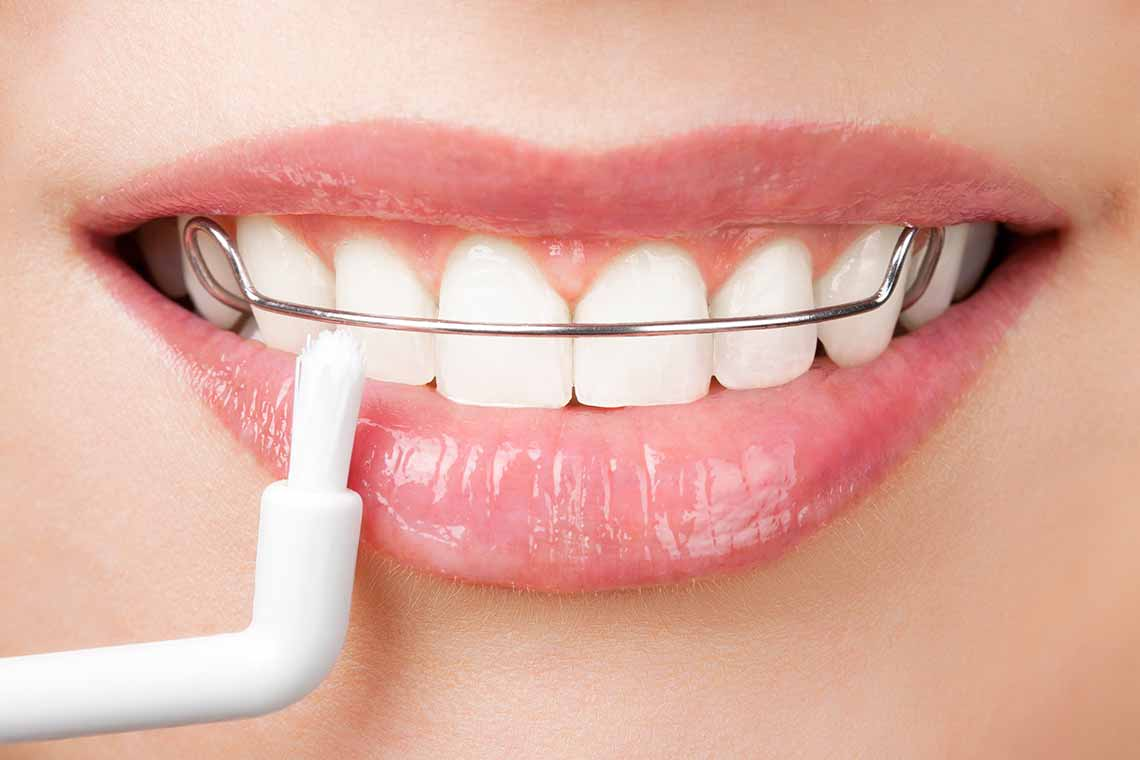 Retainer Orthodontics