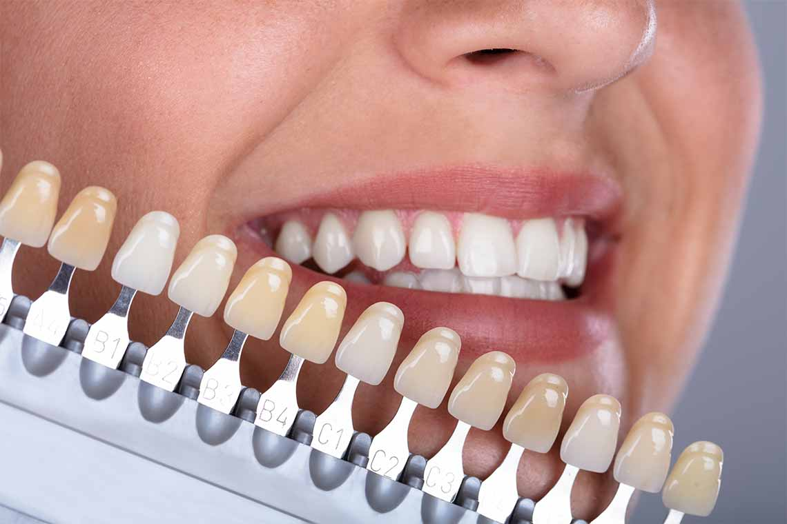 Complete Dental Examine by Dentist wagga