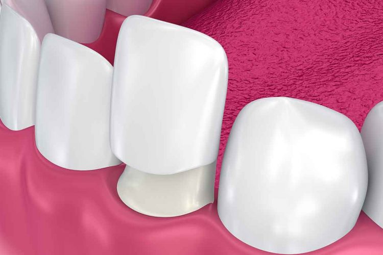 Dental Veneers illustration