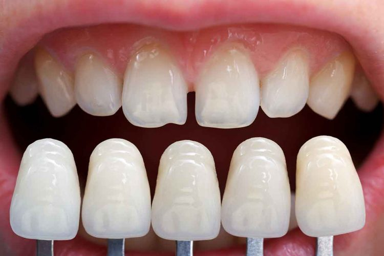 Examine top Dental Veneers