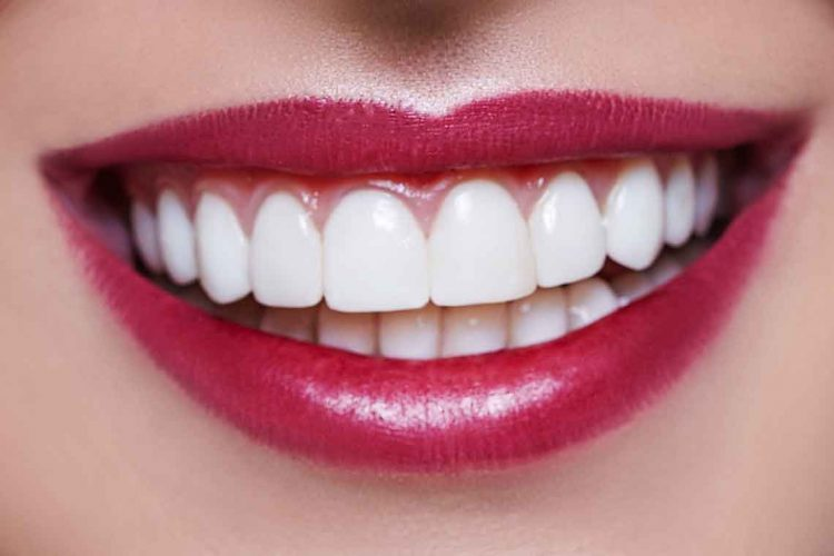 lady Smiling after Veneers