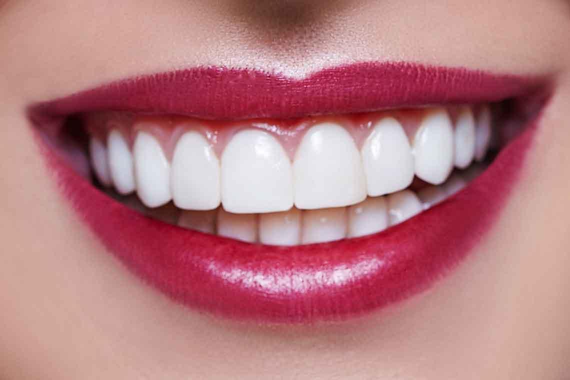 smile with veneers wagga wagga